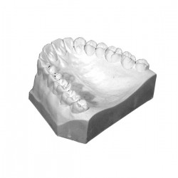 Implant Scanning Stone Charcol Type IV 25Lbs